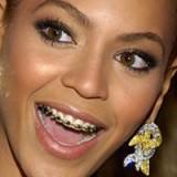 Брекеты и здоровье зубов